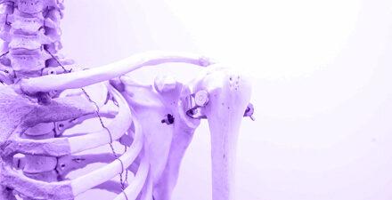 hiv bone marrow
